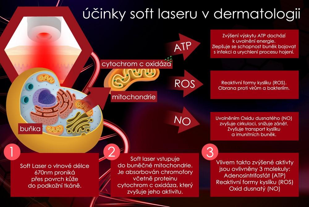 BeautyRelax Laser Force