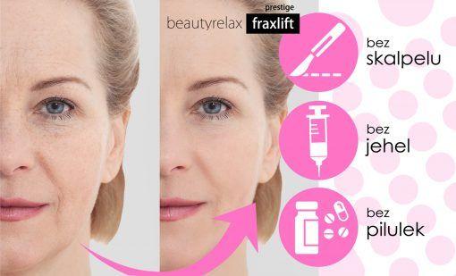 Kosmetický přístroj Beautyrelax Fraxlift Prestige