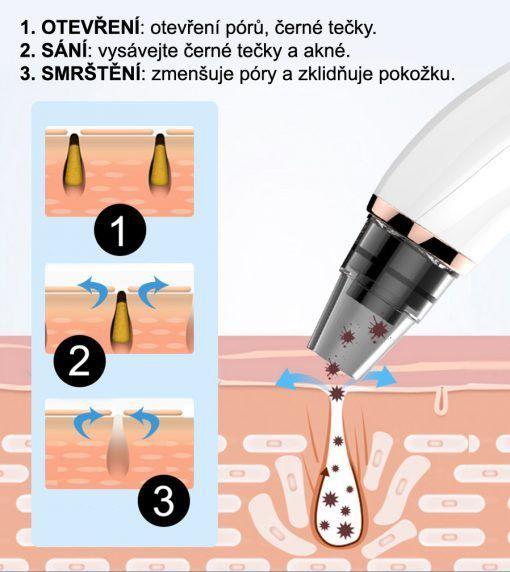 Kosmetický přístroj BeautyRelax Poremax HOT&COLD